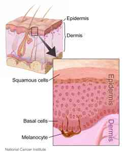 Picture courtesy of the National Cancer Institute - http://commons.wikimedia.org/wiki/File:Layers_of_the_skin.jpg